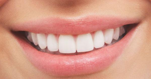 Como Clarear Os Dentes De Forma Natural Sbo